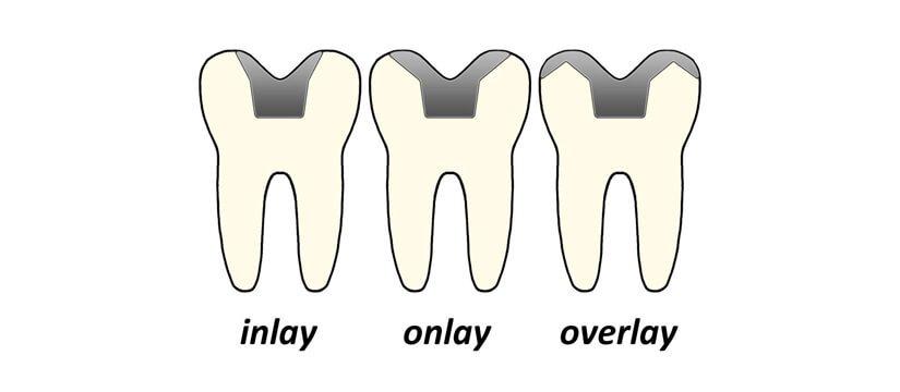 tipi di intarsio dentale