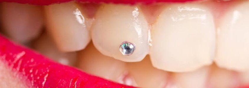 strass sul dente